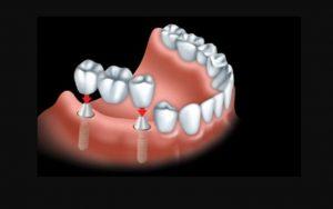 2017-04 Dental Crown CDA Image