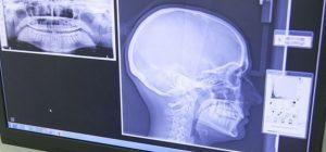 TMJ Temporomandibular Joint Disorder