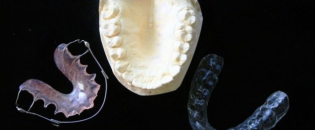 Importance of Mouth Guards
