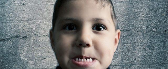 Removing Baby Teeth